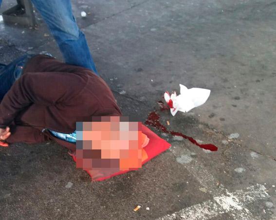 Hospitalizado en el Ramón y Cajal un taxista tras una pelea con un compañero en la T1
